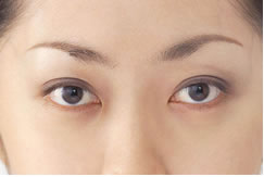 眉間のしわは顔の印象を左右する